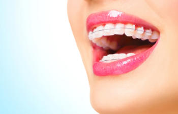 close up to a womans teeth with braces