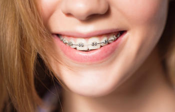close up to womans teeth with braces