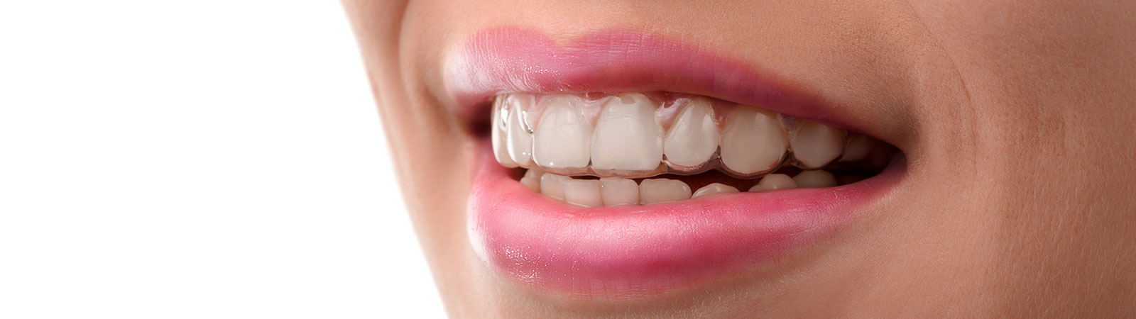 close up to a womans teeth with invisalign braces