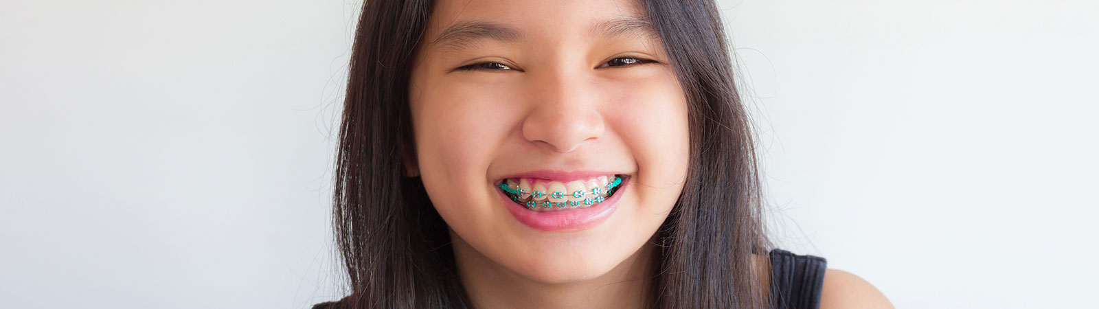 teen with braces smiling to the camera