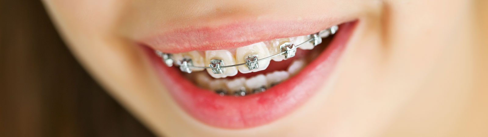 close up to a teens teeth with Self-Ligating Braces